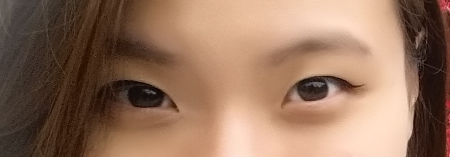 Upper Blepharoplasty / Double Eyelid Surgery in Penang Adventist