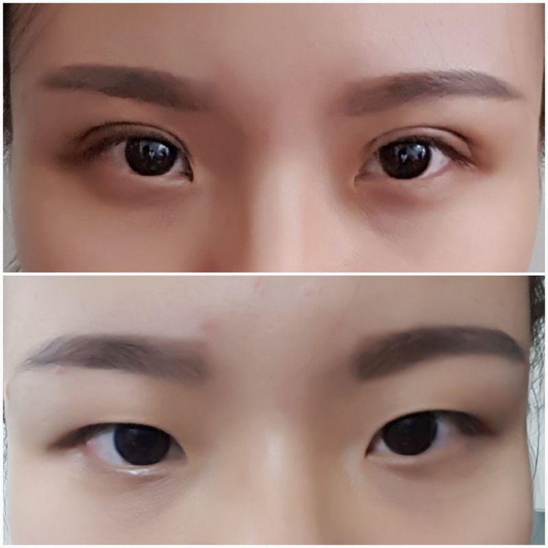 Upper Blepharoplasty / Double Eyelid Surgery in Penang