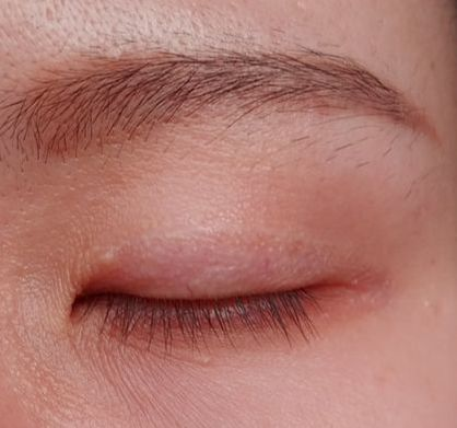 Upper Blepharoplasty / Double Eyelid Surgery in Penang